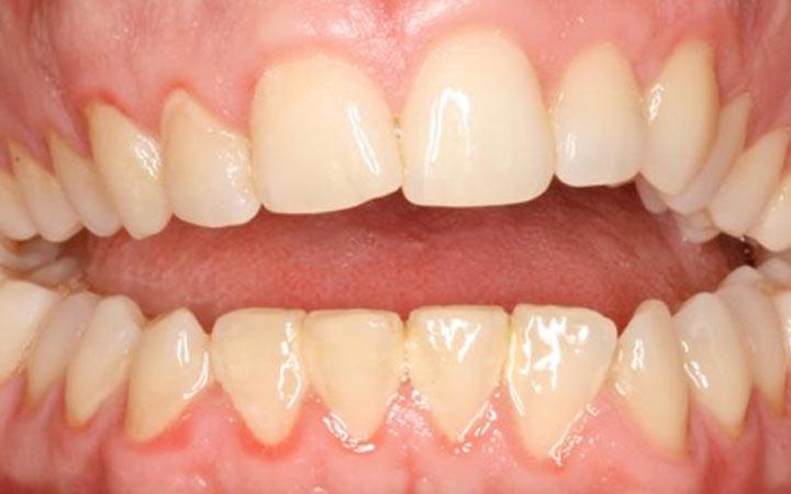 problemas ortodoncicos
