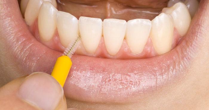 limpieza-de-protesis-dentales