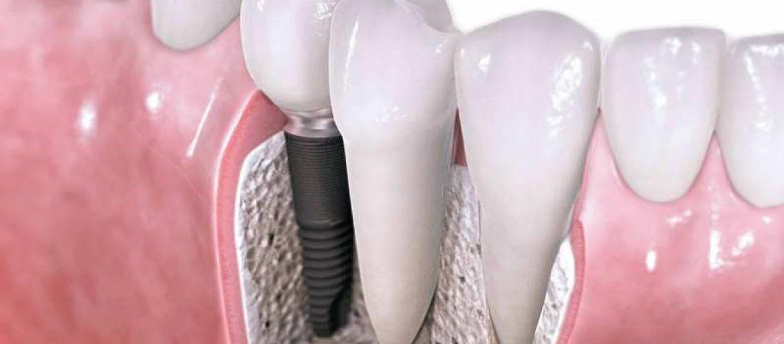 Junio mes de la implantología
