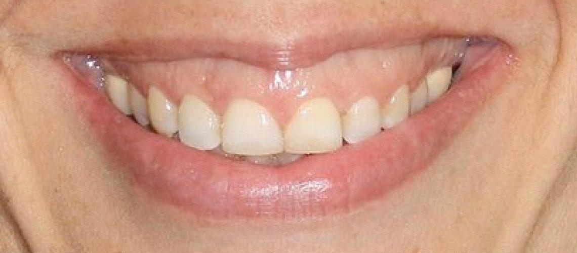 sonrisa-ging-2